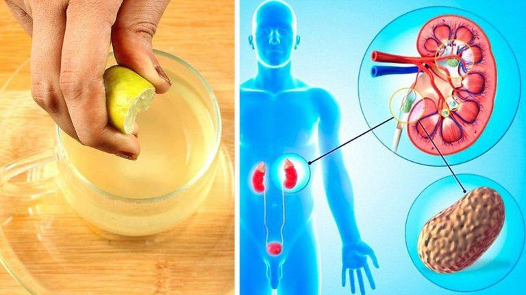 Astenoneurotinis Sindromas  Nervų Sistemos Išeikvojimo Priežastys Simptomai Ir Gydymas  Apatija 2021