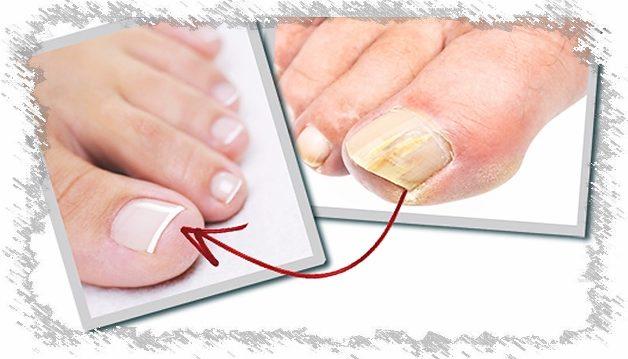 Pirštų grybelis, kaip gydyti kojų nagų onichomikozę
