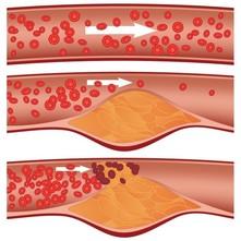 priemonės kraujagyslėms valyti nuo hipertenzijos