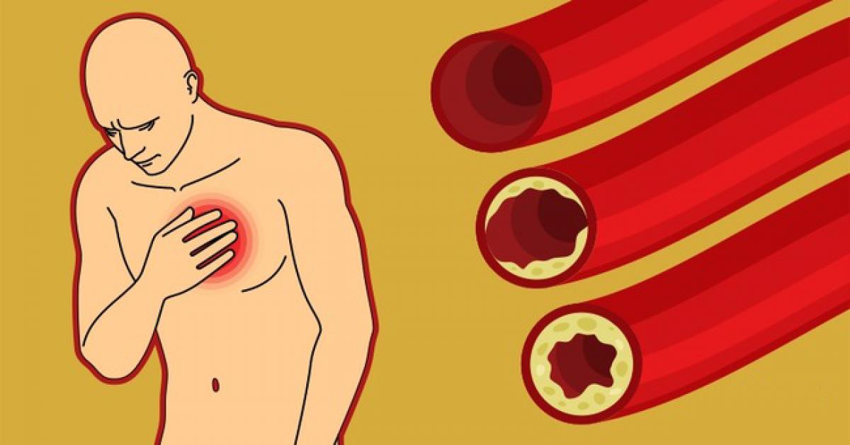 preparatai kraujagyslėms valyti nuo hipertenzijos