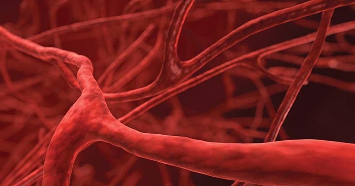 kraujagyslių hipertenzija yra draudžiama