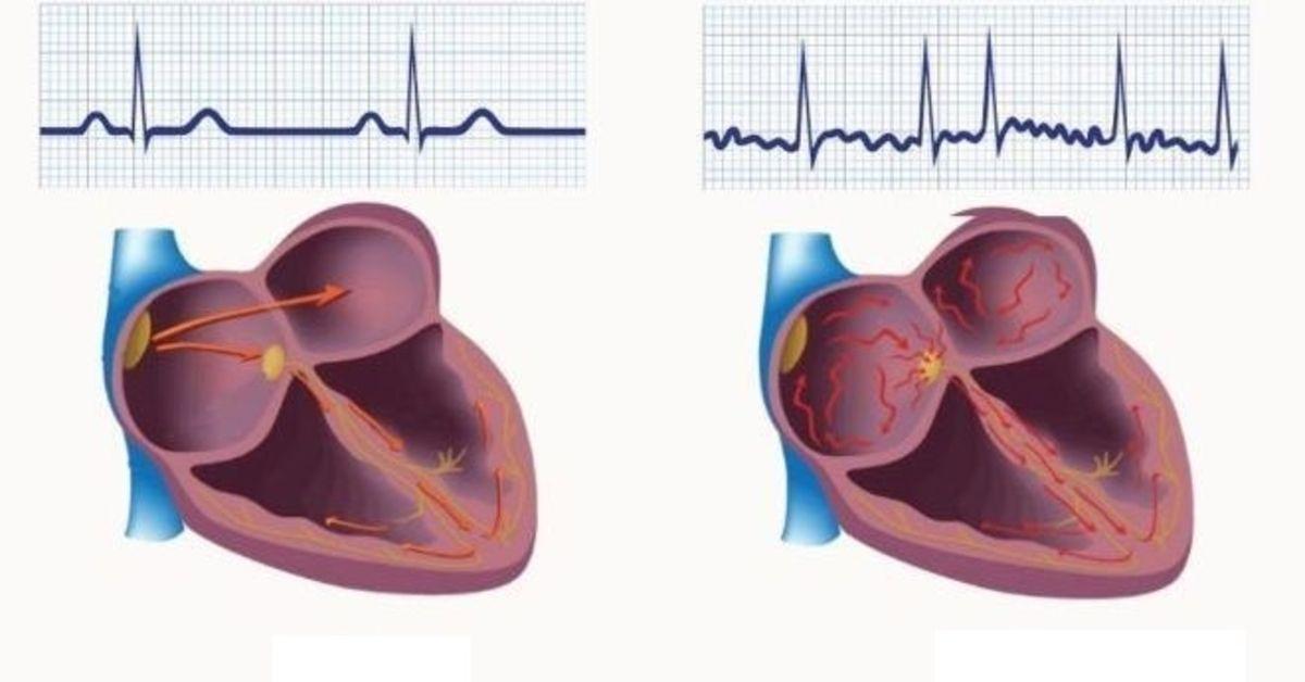 širdies sveikatos mėnesio patarimai ir faktai hipertenzijos slėgio mažinimo prietaisas