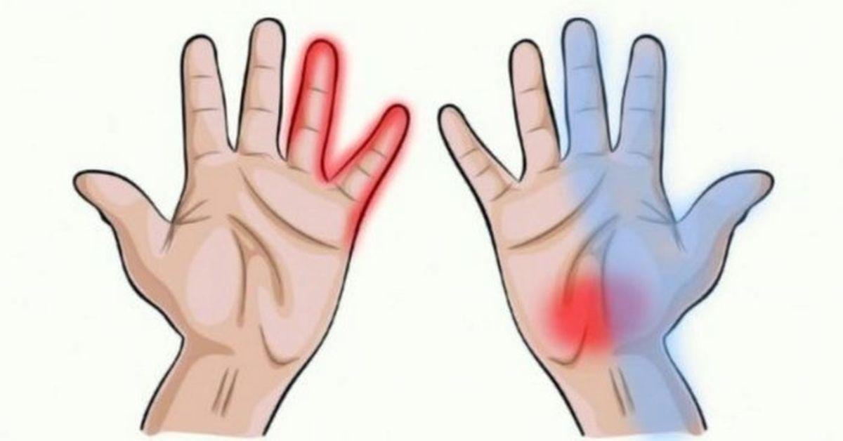 ranka tampa nutirpusi dėl hipertenzijos hipertenzijos sveikatos grupė