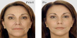 Veido kaukė, kuri padės vos per savaitę atsikratyti net giliausių raukšlių