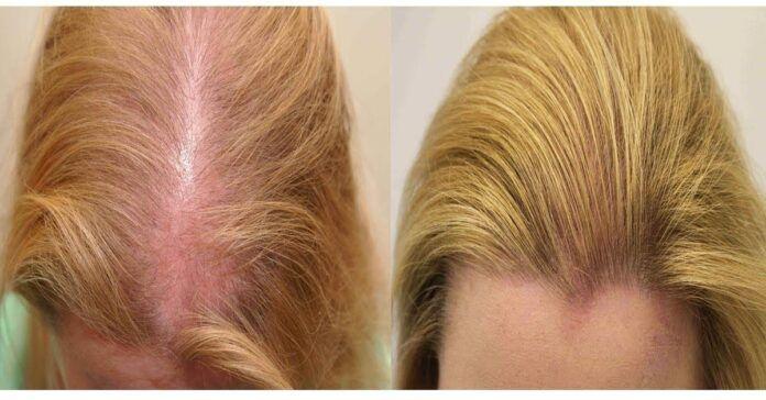 Veiksminga ir efektyvi priemonė nuo plaukų slinkimo. Išbandykite