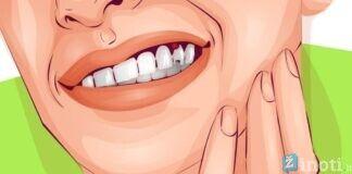 Pasitikrinkite: būdai, kaip odontologai gali iš paciento paimti daugiau pinigų