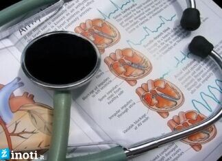 Kardiologai įspėja, kokie maisto produktai kenkia širdžiai