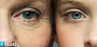 Pirmieji moterų senėjimo požymiai: ką daryti, jei jie pasireiškia?