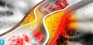 3 vaisiai, kuriuos turėtumėte valgyti, jei norite sumažinti cholesterolio kiekį