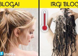 7 priežastys, kodėl plaukai greitai riebaluojasi ir kaip tai išspręsti