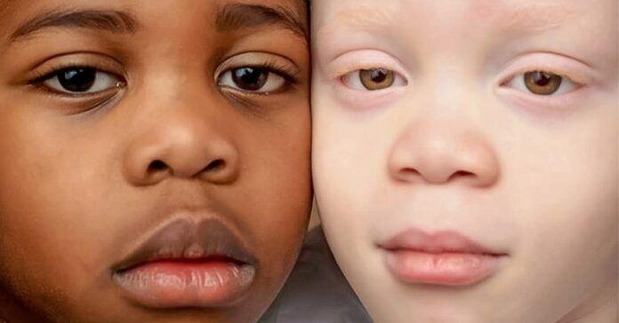 Skirtingų odos spalvų dvyniai nustebino net savo motiną