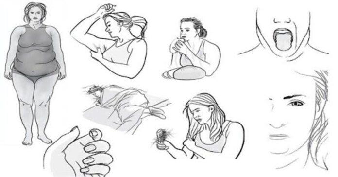 8 skydliaukės funkcijos sutrikimo požymiai. Ar žinojote juos?