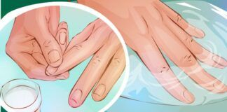 6 natūralūs būdai, kurie padės jums turėti sveikus nagus