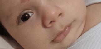 Kai gimė šis kūdikis, akušerė buvo be žodžių. Viskas dėl vieno apgamo