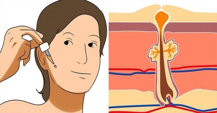 Šie 4 produktai suteiks jūsų odai elastingumo ir padės pašalinti nelygumus!