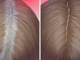Patys geriausi natūralūs būdai žiliems plaukams dažyti