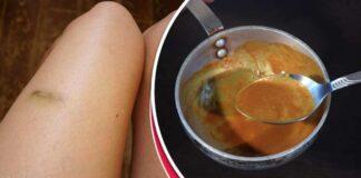 Būdai, kurie padės paslėpti ir greitai pašalinti cianozę ant kojų