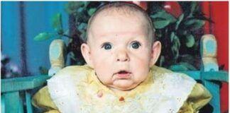 Tėvas paliko dukrą dėl jos veido. Po 22 m. ji parodė pasauliui, kad grožis slypi mūsų viduje