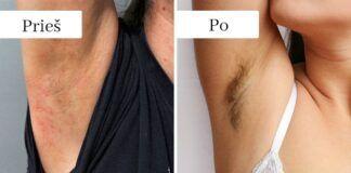 5 teigiami kūno pokyčiai, kurie atsiras, kai nustosite skustis plaukelius