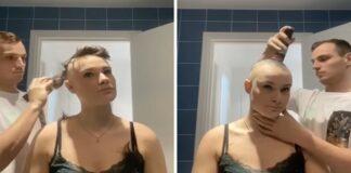 Mergina nusiskuto plaukus dėl alopecijos. Mylimasis ją palaikė