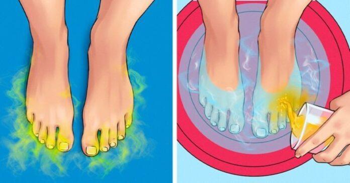 Namie pasigaminamos priemonės, kurios padės atsikratyti nemalonaus kūno kvapo