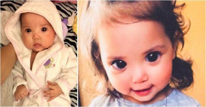 Šios mergaitės akys atrodo labai gražios ir didelės, tačiau už to slypi kai kas kita