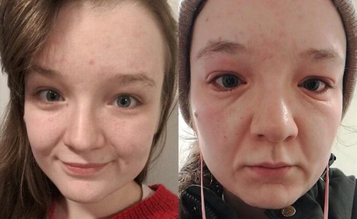 Dėl įgimtos alergijos moteris pasensta vos per kelias minutes