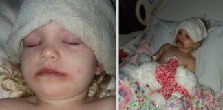 Mama staiga išgirdo, kaip dukra rėkia iš skausmo. Ligoninėje paaiškėjo, kodėl taip nutiko