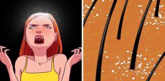 Blogi kasdieniai įpročiai, kurie sukelia plaukų slinkimą