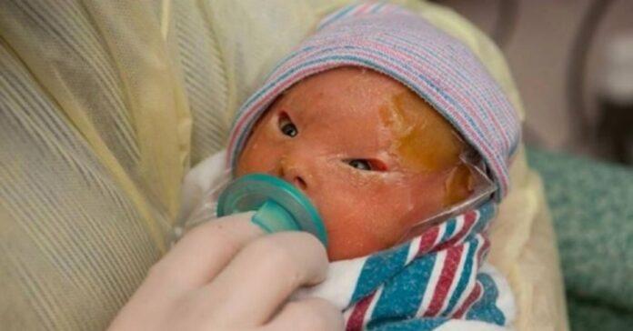 Mama buvo šokiruota, kai pamatė naujagimę dukrą. Bet po 2 savaičių suprato, kad ji yra stebuklas!
