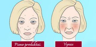 N. Talib dieta: kokių 4 maisto produktų reikia atsisakyti, kad pagerėtų odos būklė?