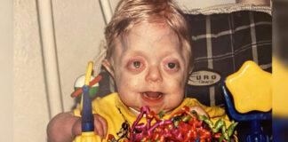Slaugytoja nusprendė priglausti neįprastos diagnozės vaiką - taip jis atrodo po 17 metų