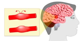 Pirmieji galimos smegenų aneurizmos požymiai. Svarbu juos žinoti