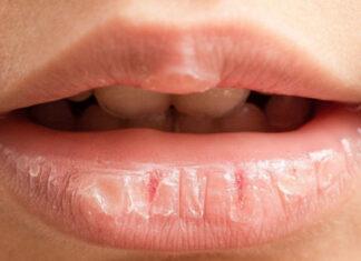 Kokios rizikos kyla, jei naudojate per daug lūpų balzamo?
