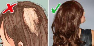 Jei jums slenka plaukai, atkreipkite dėmesį į šiuos įpročius