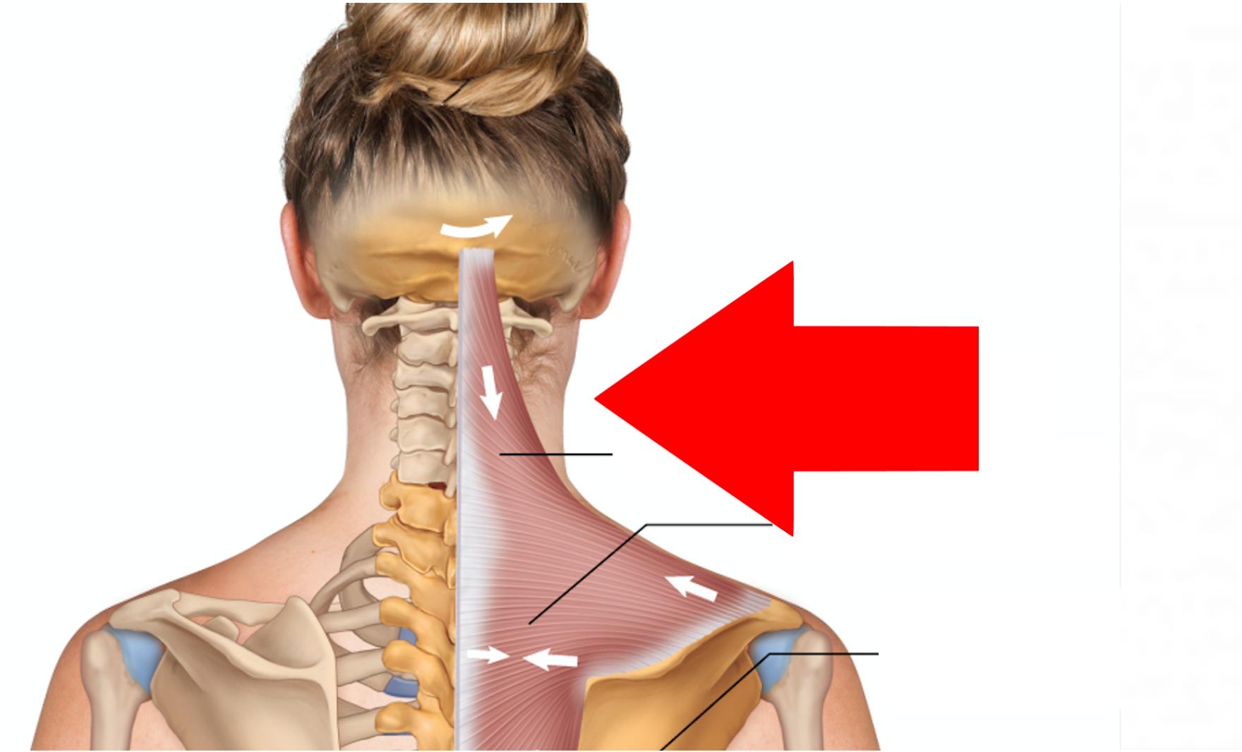 Stiprus ir staigus galvos skausmas