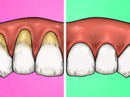 4 ženklai, kad per stipriai valote dantis, ir 4 būdai, kaip ištaisyti šį blogą įprotį