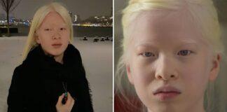 Tėvai atsisakė auginti savo dukrą dėl jos albinizmo. Galiausiai ji tapo fotomodeliu