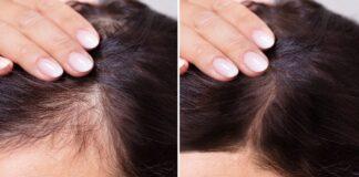 Kaip pažadinti neveikiančius plaukų folikulus?